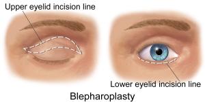 Blausen_0085_Blepharoplasty-EyeLift
