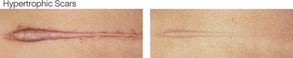 scar-hypertrophic