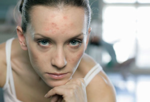 getty_rf_photo_of_woman_with_acne